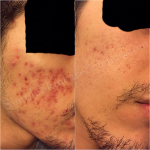 PIE hyperpigmentation before and after