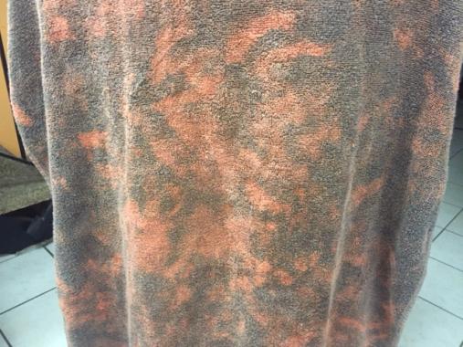 benzoyl peroxide towel