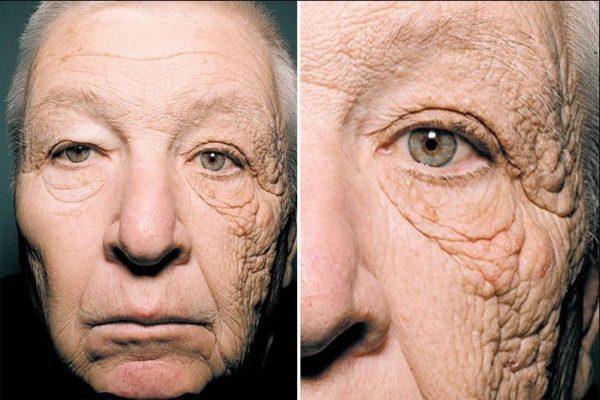 Salicylic Acid for Skin Explained (34 Studies): Everything