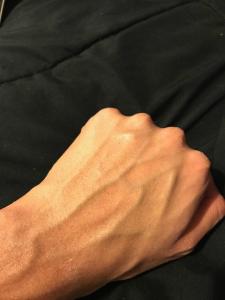 eltamd uv clear spf 46 dried on skin