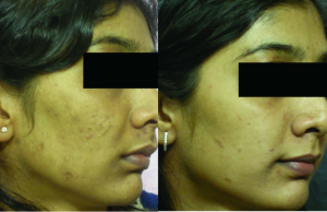 glycolic acid peel before and after