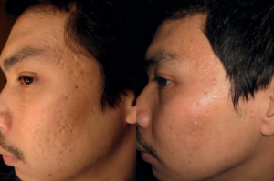 micro needling before and after