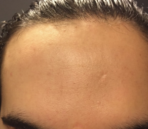 cosrx-bha-before-and-after
