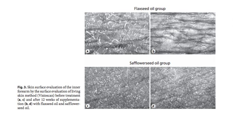 flaxseed oil skin before after