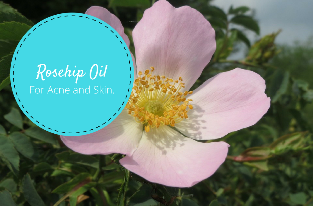 Rosehip Oil For Acne and Skin: Everything You Need to Know
