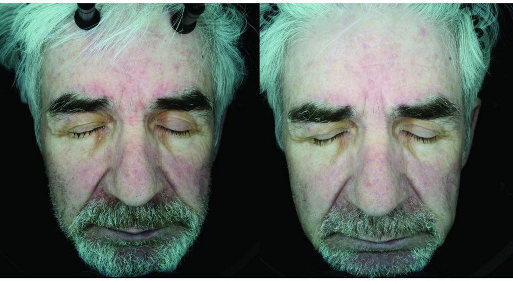 Hyaluronic Acid for Skin Explained (25 Studies): EVERYTHING