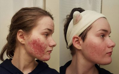 How 50 Different Redditors Cleared Their Acne Using Science!