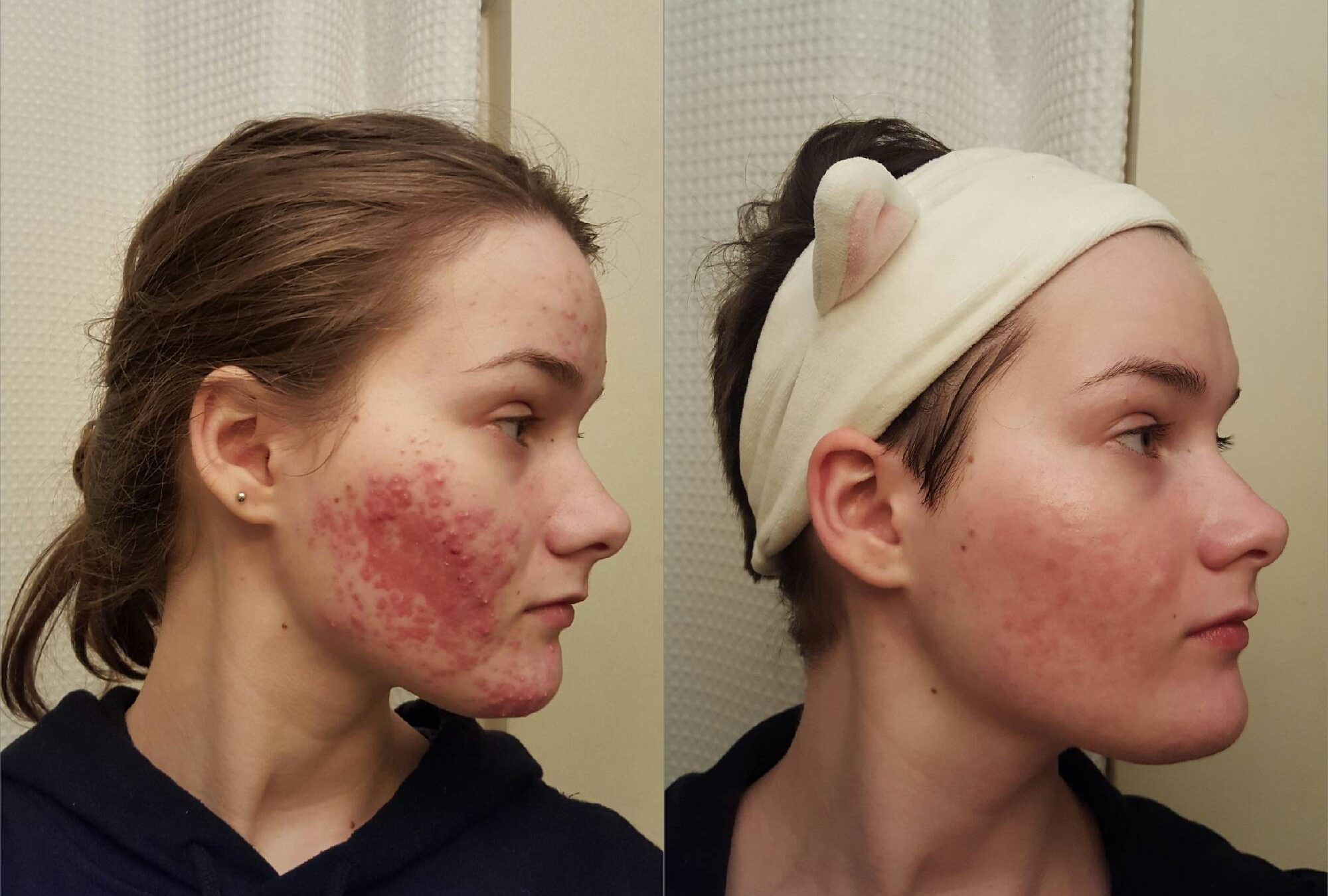 How 50 different skincare addicts from reddit cleared their acne ccuart Choice Image