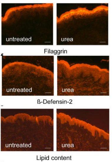 Urea For Skin Explained (14 Studies): Literally Everything