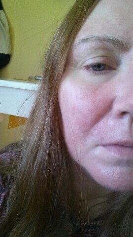 Crystal Blue's Skincare Story: How I Beat Malassezia Overgrowth