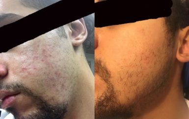 How 50 People From Reddit And Youtube Cleared Their Fungal Acne