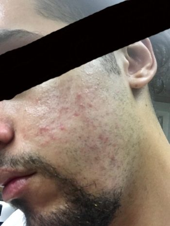 Fungal Acne Before